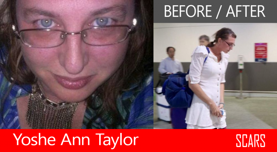 Yoshe Ann Taylor - Before And After The Cambodian Prison