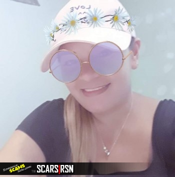 80 Real Scammers Gallery #66326 - SCARS|RSN™ Faces Of Evil 33